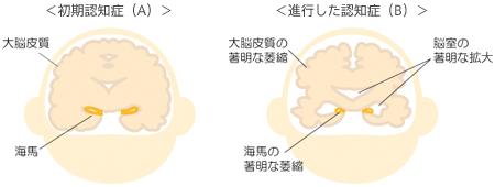 アルツハイマー病型認知症とは |...